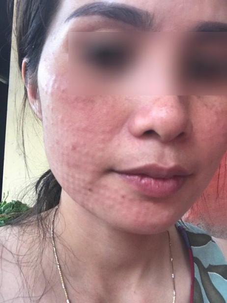 Hình ảnh nữ bệnh nhân bị nổi sần khắp mặt sau khi tiêm collagen